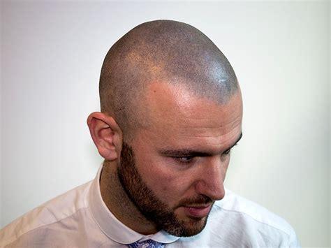 scalp micropigmentation in pakistan temporary scalp micropigmentation smp the advantages