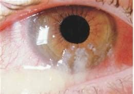 has mucus in eye eye discharge listen to what your eye says and do something to protect it eye