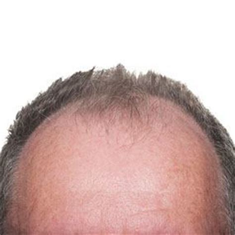 male pattern hair loss testosterone new study bimatoprost can grow hair on your head garma