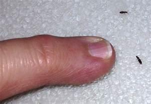 grain beetles what s that bug