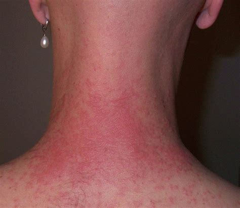 ouch caterpillar induced rash by bitterjug flickr photo sharing