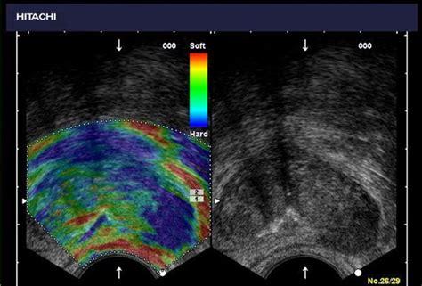 color flow doppler color flow doppler ultrasound technology