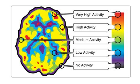 what color is the brain brain imaging technologies