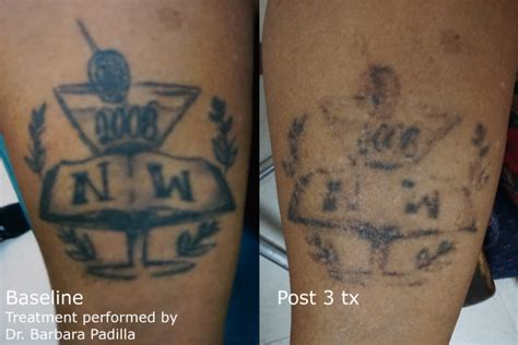 is laser tattoo removal effective laser removal enlighten and most