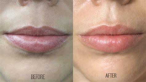 Lipstik Nyx Kw what types of lip fillers are there the of