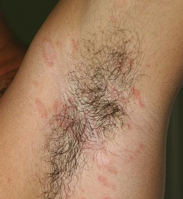 christmas tree pattern rash pictures 28 best pityriasis rosea christmas tree pityriasis