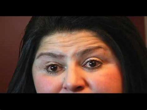 terminal report sle la enfermedad de lupus