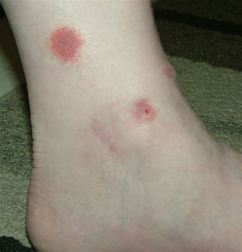 house spider bite types of house spider bites pictures to pin on pinterest pinsdaddy