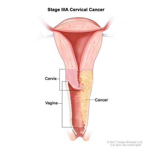 cross section of vagina cervical cancer treatment pdq 174 health professional