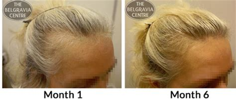 hair styles for foward hair growth pattern what s the link between belly fat and hair loss