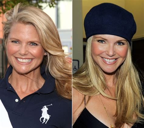 celebrity neck lift christie brinkley face lift before after photos