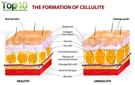 Getting Rid Of Cellulite by How To Get Rid Of Cellulite In Thighs Top 10 Home Remedies
