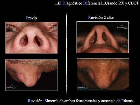 dolore interno seno infecci 243 n de un pelo de la nariz diagn 243 stico diferencial