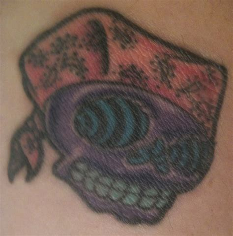 trichloroacetic acid tca tattoo removal june 2011