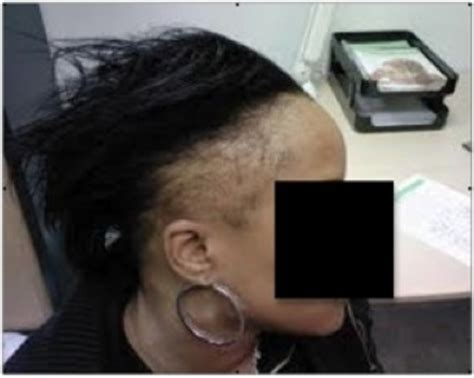 hair loss behind the ears in women traction alopecia causes and treatment dermhair clinic