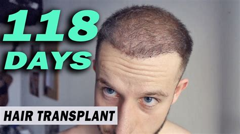 neograft in turkey fue hair transplant day 118 post op istanbul turkey