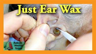 ear wax removal doctor auburn