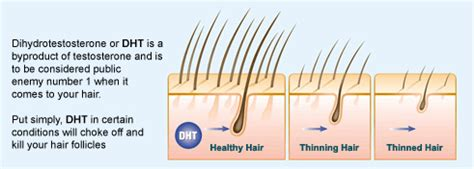 dht and 5ar hair loss in women testosterone hair loss