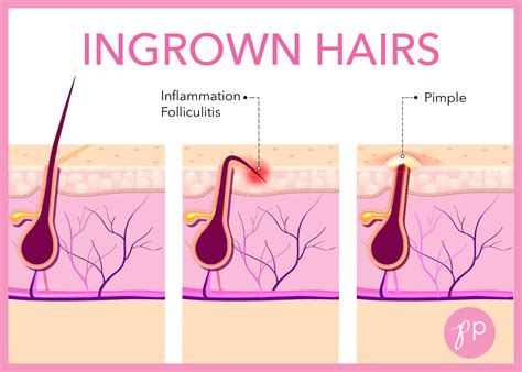 do you know how to reduce ingrown facial hair beauty how to prevent ingrown hairs the pretty pimple