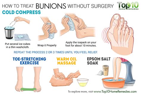 how to a without treats how to treat bunions without surgery top 10 home remedies