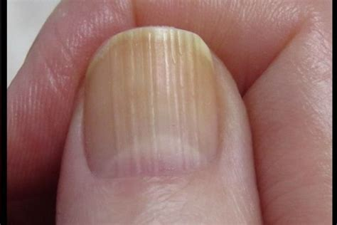 dark nail beds dark nail beds what does it mean how you can do it at