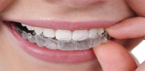 flexible partial dentures valplast flexible denture cost