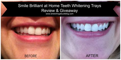 smile brilliant  home teeth whitening trays review