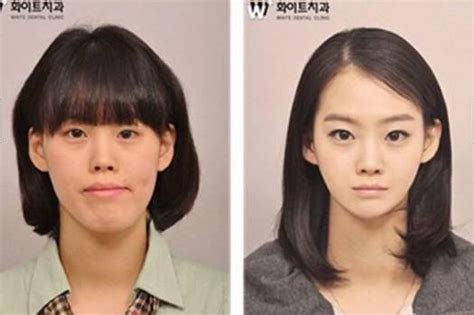 Los 10 Modelos Coreanos Mas Famosos Que Se Convirtieron En Actores | los 10 modelos coreanos mas famosos que se convirtieron en