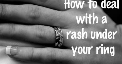 Wedding Ring Leaving Rash by Dr Visha The Rash The Ring