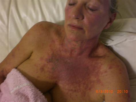 how you get morgellons disease caroline carter morgellons sufferer and healer breaks