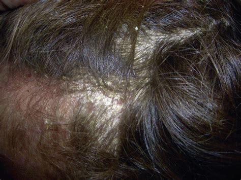 psoriasis cuero cabelludo psoriasis en la infancia y adolescencia