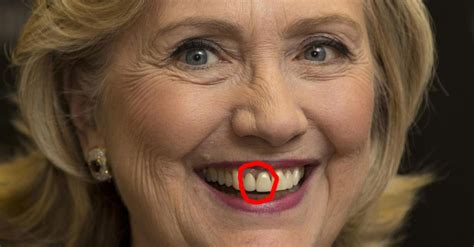 chelsea peretti teeth this dentist analyzed the teeth of the 2016 presidential