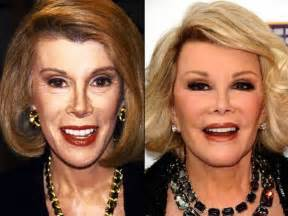 Before Surgery Before And After A Plastic Surgery 21 Pics