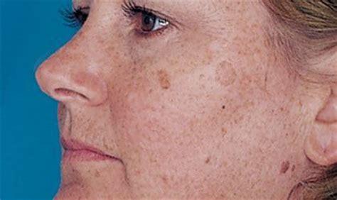 191 por qu 233 salen manchas en la cara 4 causas comunes - Porque Salen Manchas En La Cara