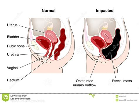 diagram of constipated bowel stock vector image 12609717