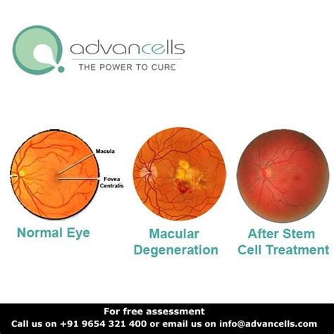 stem cell treatment now stem cell treatment now some alternative pin by advancells india on stem cells treatment pinterest