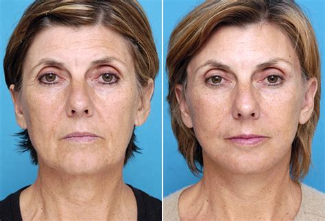 fat grafting plastic surgery fat injections into cheeks before and after fat transfer