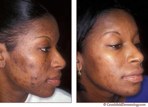 Derma Acne Patch Original acne laser treatment on american before