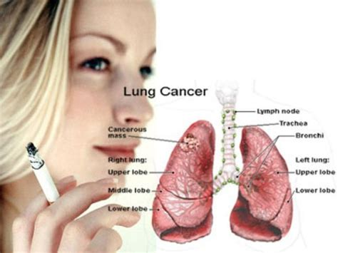 And Cancer by 10 Interesting Lung Cancer Facts My Interesting Facts