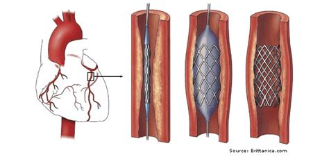 coronary angioplasty with or without stent implantation angioplasty and stent top exercise guidelines