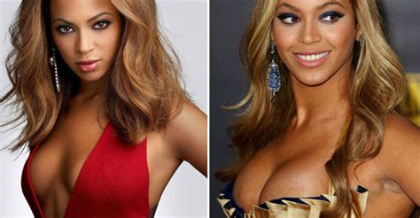 breast implants surgery all about celebrity breast celebrity breast implants before after celebrity