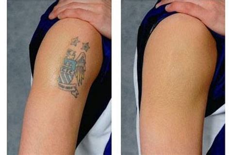 tattoo surgical removal how to remove a permanent diy methods and surgical