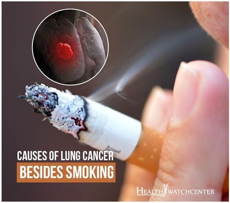 Lung Exclusive L 1 factors of developing lung cancer besides