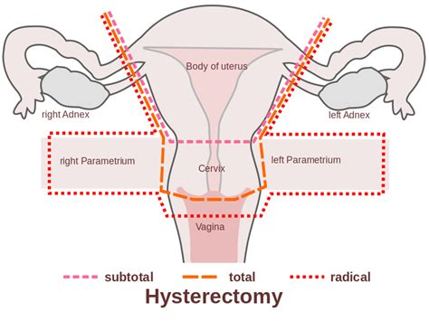 diagram of hysterectomy file scheme hysterectomy en svg wikimedia commons