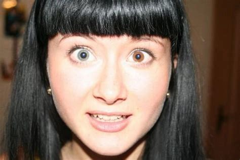 Associated Ugliness by Heterochromia Ugliness Or 12 Photos Page 1