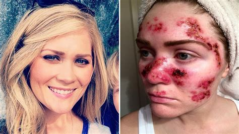 tanning bed burn relief skin cancer victim shares photo of treatment as warning