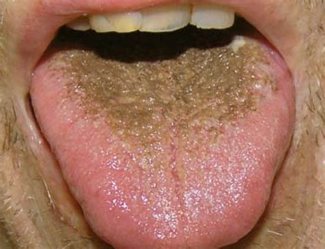 black spot on s tongue brown spots on tongue causes treatment and pictures