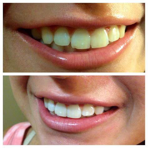 teeth whitening skin solutions corona