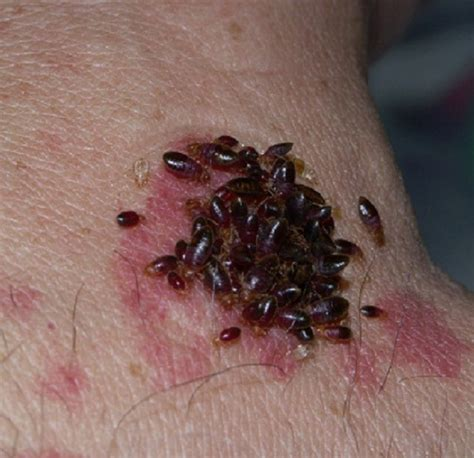 pic of bed bug bites bed bugs pictures pictures of bed bug bites bed bug