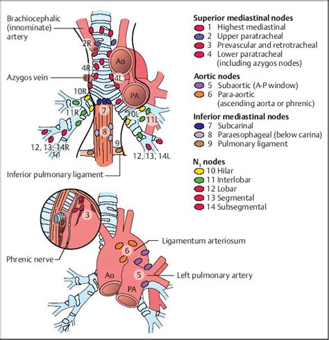 lung pattern classification lung lymph node levels pictures to pin on pinterest